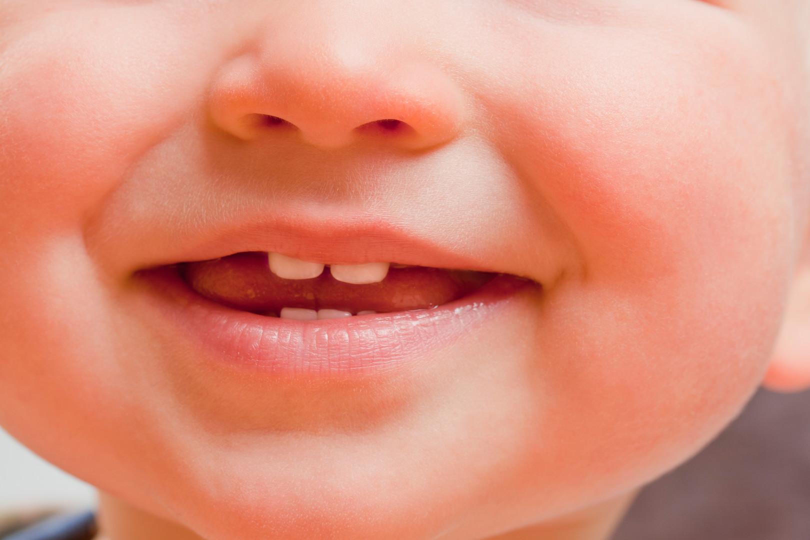 Zahnarzt Kinder - Mund-Kiefer-Gesichtschirurgie Dorsten