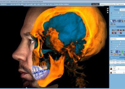3DMax-3-x-3D-CBCT-ProFace-impression-scan-1024x640