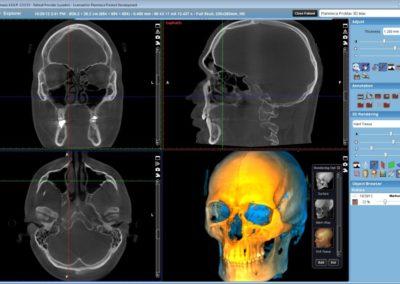 3DMax-Full-skull-1024x640