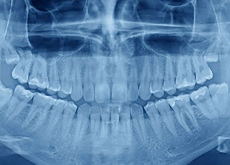 Zahnarzt Röntgen Aufnahme -Mund-Kiefer-Gesichtschirurgie Dorsten