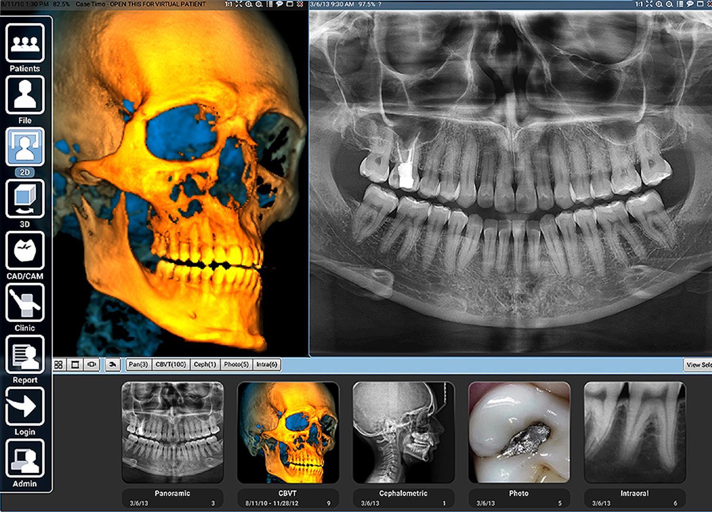 Digitale Voloumentherapie DVT - Ärtzehaus Mund-Kiefer-Gesichtschirurgie Dorsten