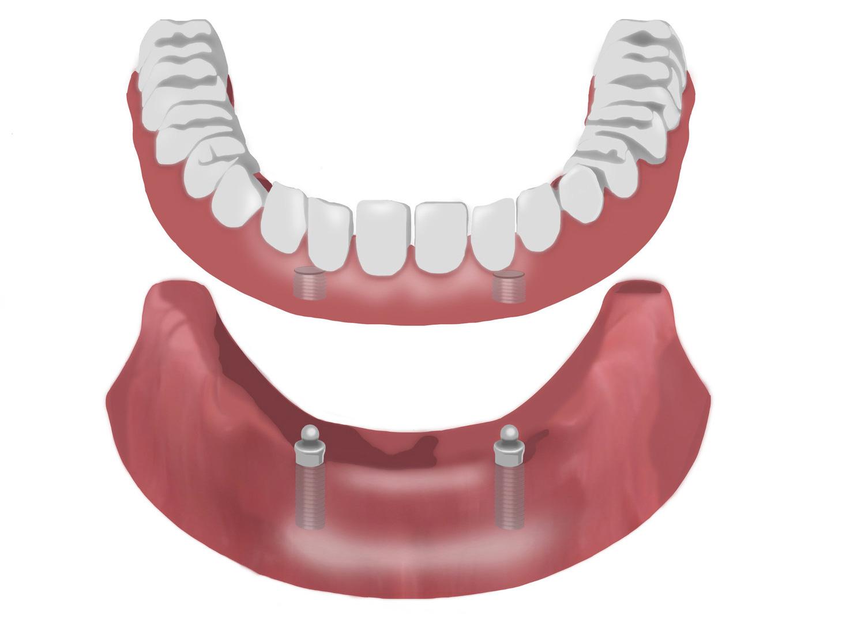 Prothese - Mund-Kiefer-Gesichtschirurgie Dorsten