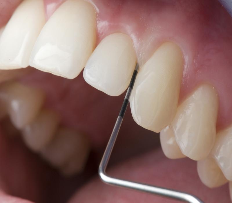 Zahnschmerzen - Ärtzehaus LaVie Dorsten